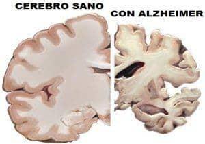 Alzheimer: causas, diagnóstico y tratamiento